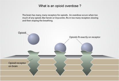 What is an Opioid Overdose